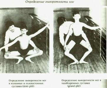 Выворотность в тазобедренных суставах височно-нижнечелюстной сустав, топография